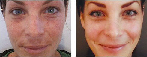 Chemical Peels Apollo Dermatology